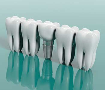 3D illustration of a Dental Implant