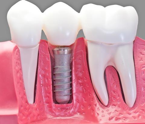Best Dental Implants treatments at Sherwood Dental in Oakville