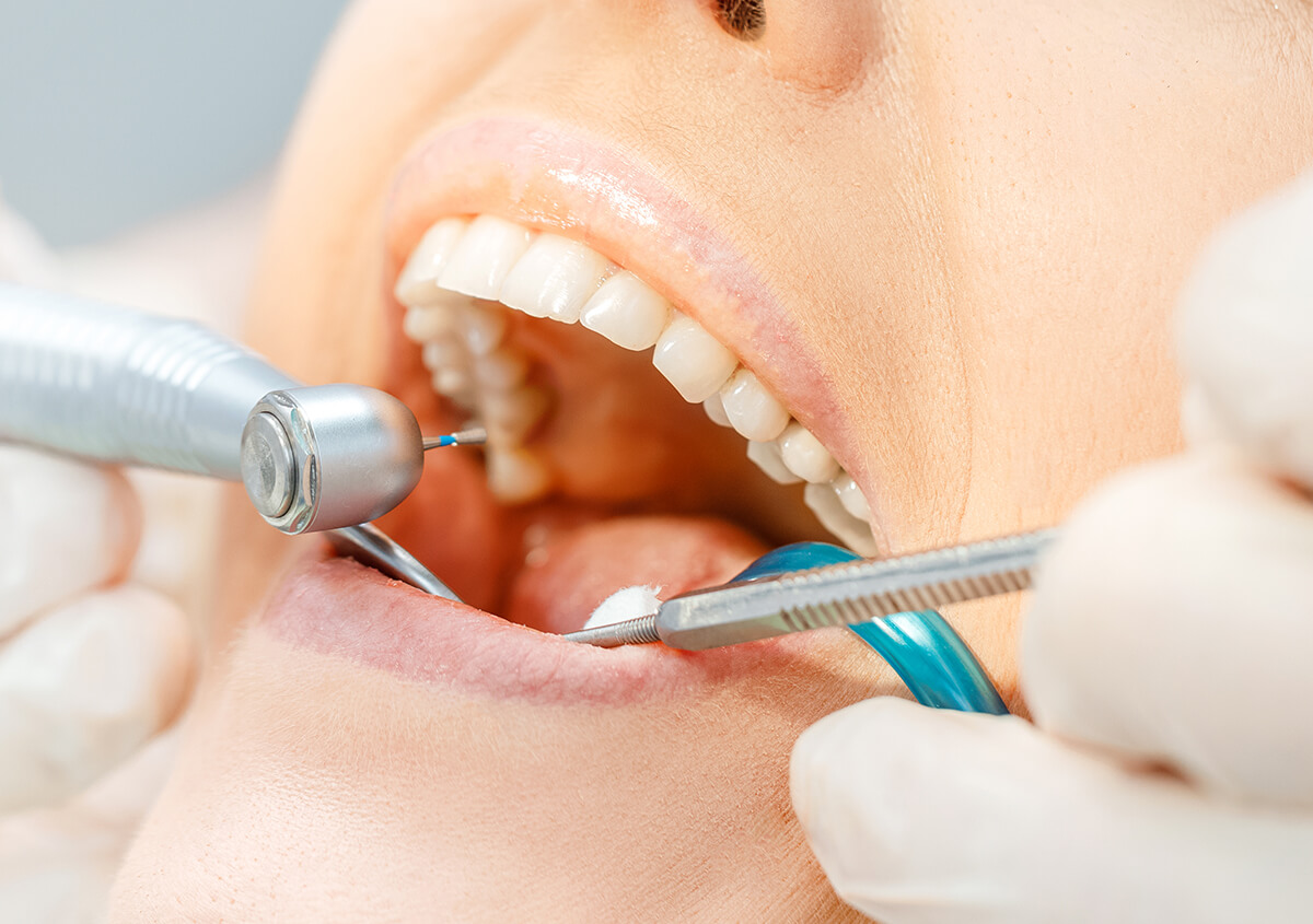 Are You Considering Root Canal Services in Oakville, ON Area