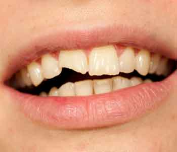 Dr. Gaines will fixed Discolored or chipped teeth