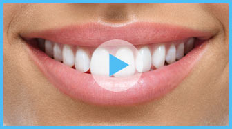 Dentist Oakville - Teeth Whitening Video